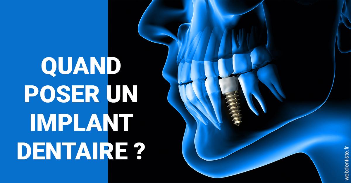 https://dr-michael-szejner.chirurgiens-dentistes.fr/Les implants 1